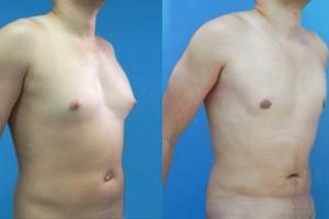 Ginecomastia: cuando al varón le crecen los pechos