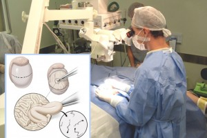 micro-TESE: más esperanzas para pacientes con azoospermia