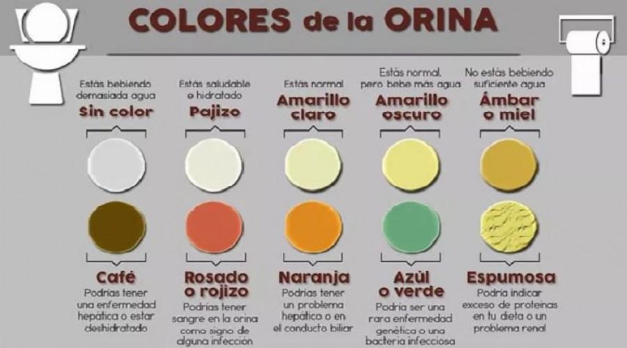 ¿Qué nos dice el color de la orina?
