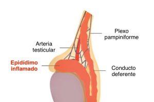 Epididimitis y orquiepididimitis: inflamación y dolor testicular agudo