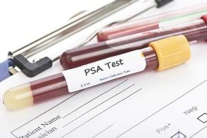 ¿Puede estar el PSA elevado por otros motivos distintos al cáncer de próstata?