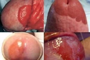 El peligro de una mancha roja en el pene