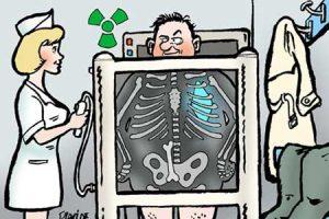 viagra radiografía