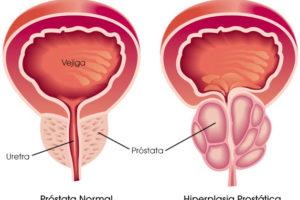 Más riesgo de cáncer de próstata y vejiga en pacientes con HBP