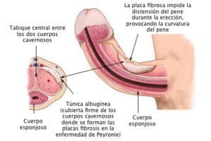 Enfermedad de Peyronie: causas, diagnóstico y tratamiento