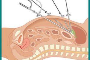 La cirugía laparoscópica en Urología