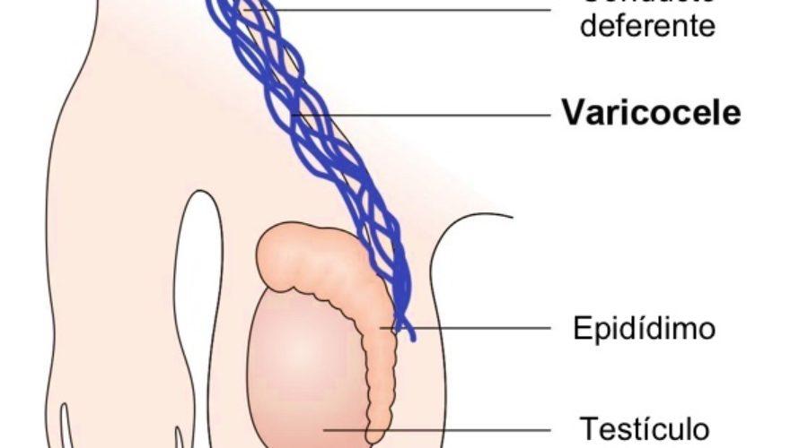 bulto entre la pierna y los testiculos