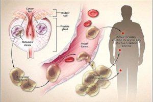 Aumentan los casos de cáncer de próstata metastásico en EE.UU.