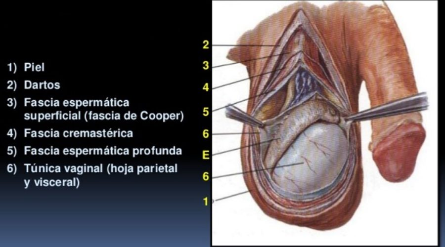 la operación de próstata no eyacula espermático