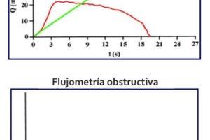 ¿Qué es una flujometría y cómo se interpreta?