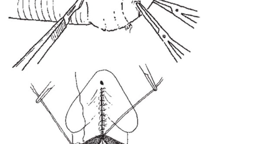 Circuncisión en el adulto ¿cuándo hay que hacerla?