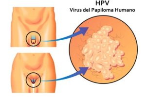 Verrugas genitales y cáncer por el virus del papiloma humano (VPH)