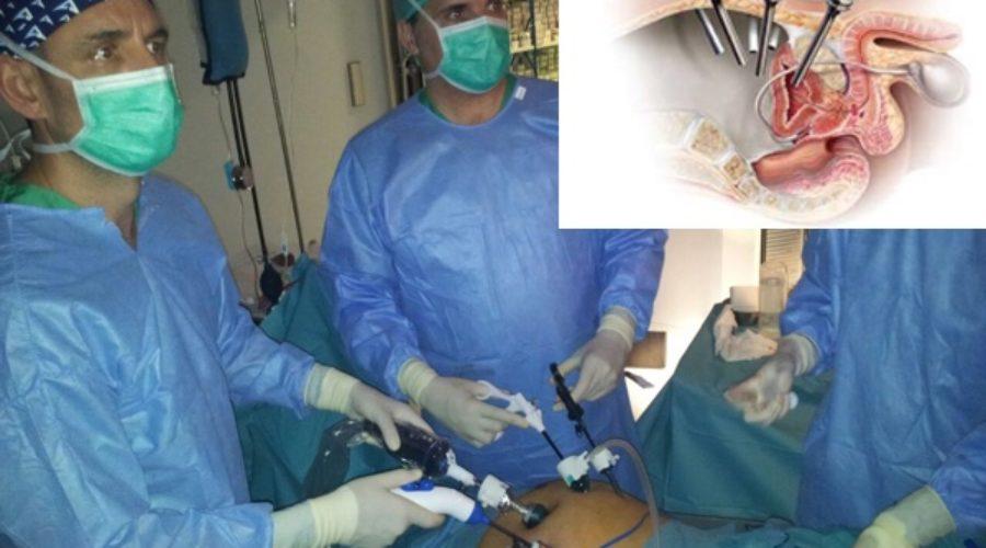 tratamiento con abiraterona para el cáncer de próstata