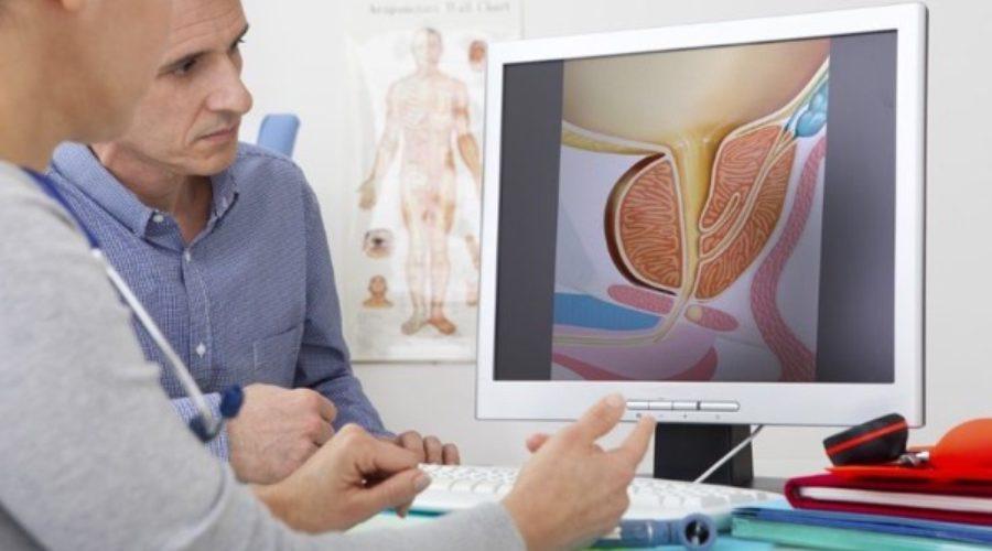 Seguimiento del paciente tras prostatectomía radical