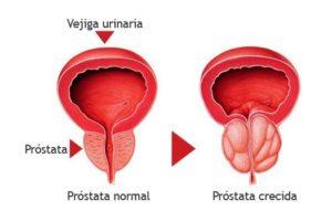 Me han dicho que tengo una próstata pequeña ¿estoy a salvo?