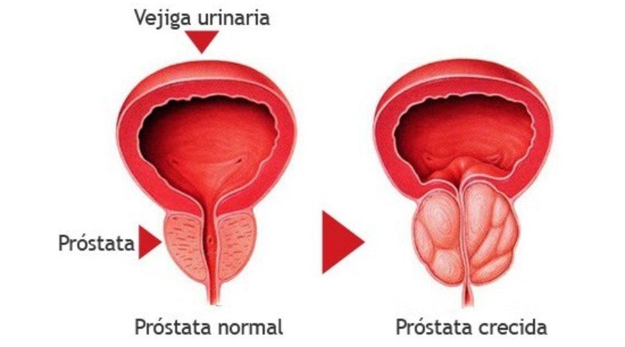 prostata pequena sintomas