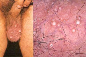 Quiste sebáceo escrotal o peneano ¿es necesario extirparlo?