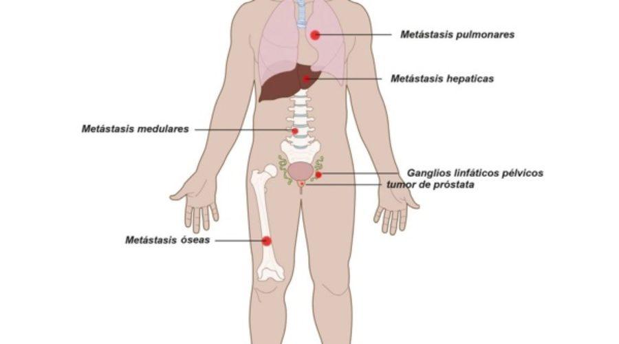 síntomas de próstata femoral