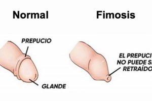 Fimosis fisiológica y fimosis patológica en el niño