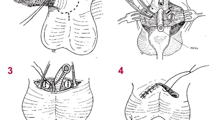 ¿Cómo se realiza una penectomía por cáncer de pene?