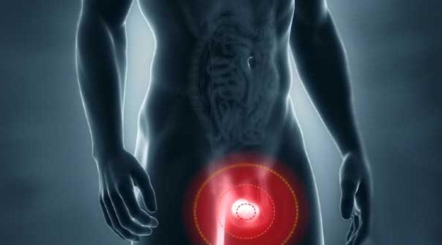 problemas de próstata y dolor testicular