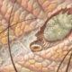 Sarna en el escroto ¿qué síntomas produce?